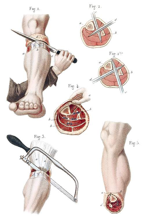 Amputation of the Leg