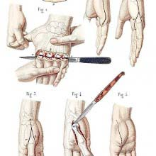 Disarticulation of the four fingers and of the metacarpal bones