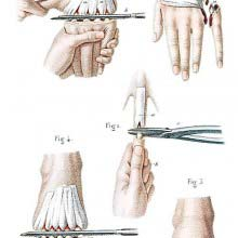 Amputations in the continuity of the bones