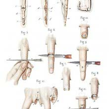 Disarticulation of phalanges and finger