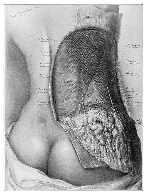 Medical plate showing a woman's back with an écorché view of the lumbar region