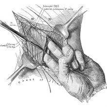 Surgical operation showing the surgeon insertiong two fingers inside a muscle incision