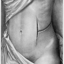 Plate showing a woman's torso bearing a T-shaped surgical incision on the side of abdomen