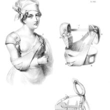 A woman is wearing her arm in a sling as bandages and slings can be seen depicted on the same page