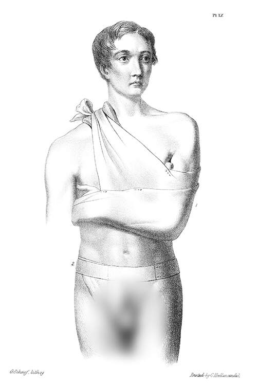 Medical plate showing a man wearing clavicle and inguinal bandages