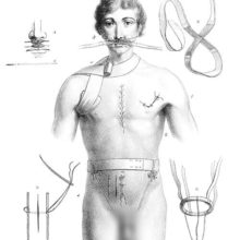 Medical plate showing a man bearing various kind of sutures and wearing miscellaneous bandages