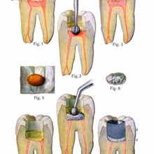 Plate showing the various steps involved in pulpotomy and cavity filling