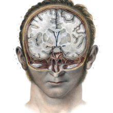 Head of a man cut away along the frontal & transverse planes, exposing a cross-section of the brain